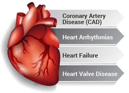 heart disease feb 2021 heart.jpg